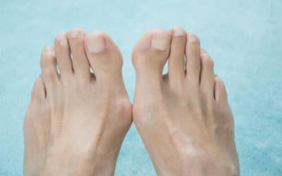 Take Control Over Your Bunions
