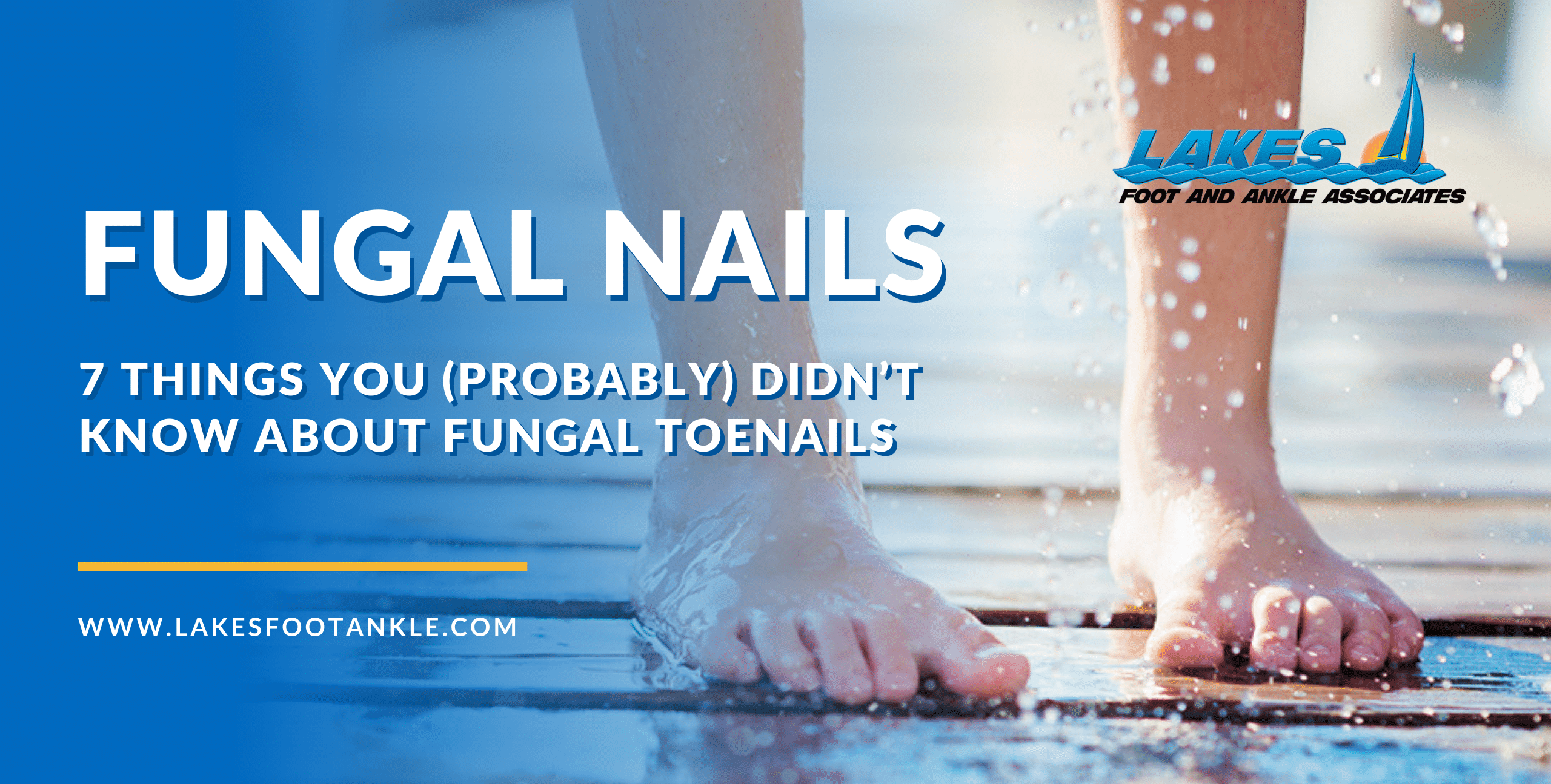 7 Thing You Probably Didn't Know About Fungal Toenails