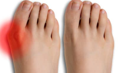 Should You Consider Bunion Surgery?