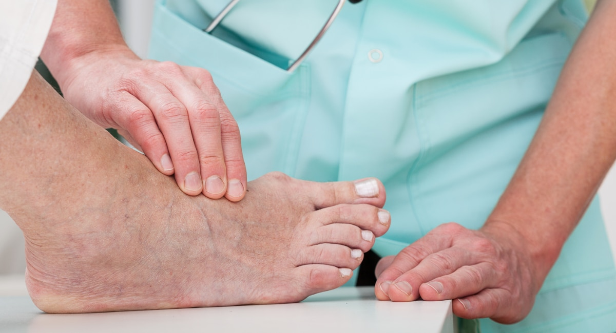 Doctor examining foot with bunion