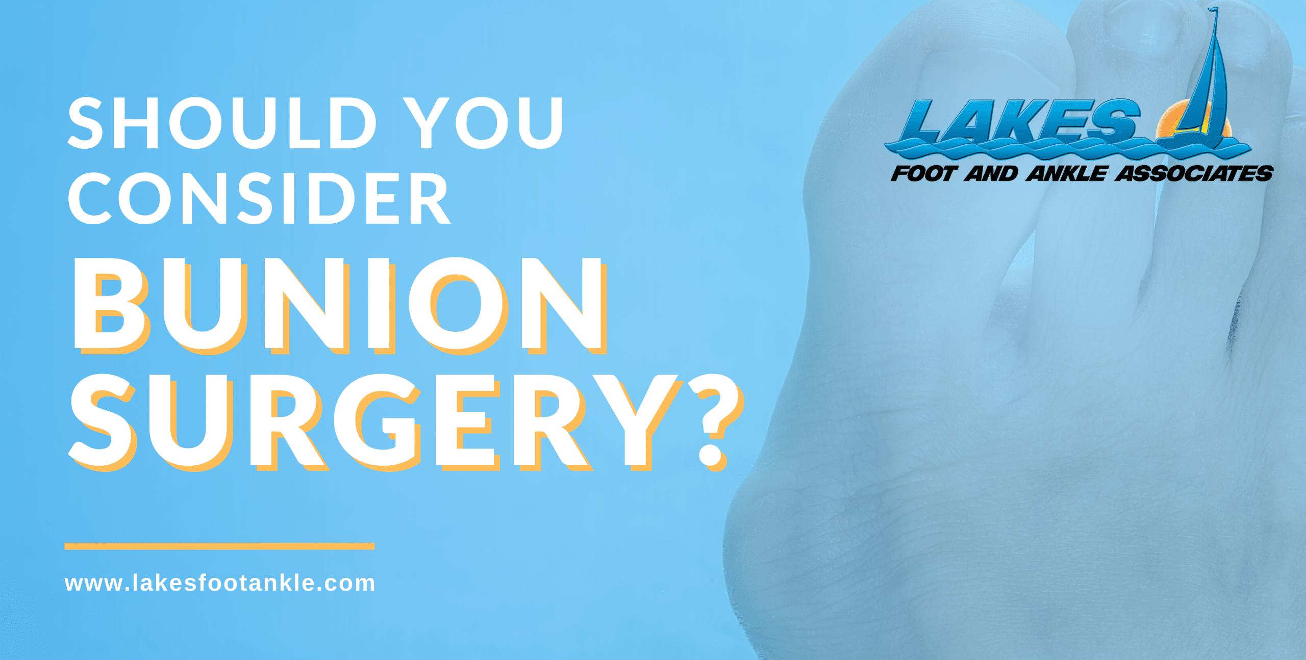 Should You Consider Bunion Surgery?